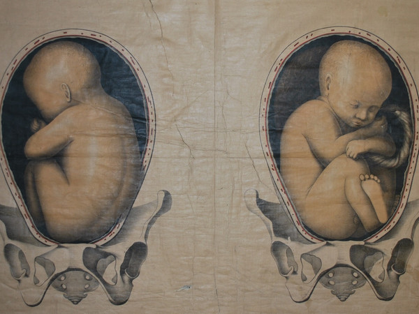 Tavola editoriale Schultze con feti in presentazione podalica, tavola telata, del XIX secolo<br />